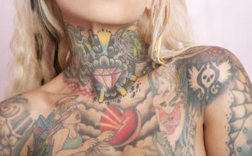 Tattooentfernung mit dem Laser